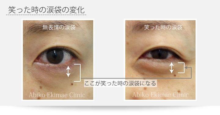 涙袋と目の下の膨らみ取り(経結膜脱脂法)の関係 …